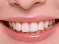 前歯を見せた笑顔